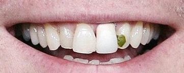 Spinach in Teeth