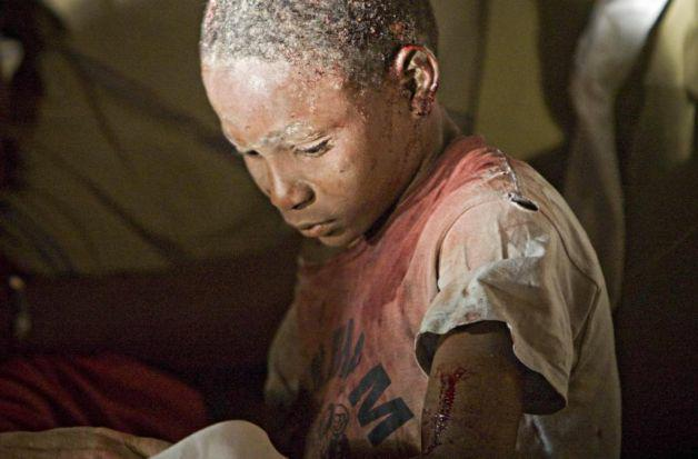 Haiti Earthquake Victim-AP Photo