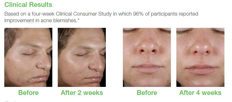oter les points noirs quebec. Black Bedroom Furniture Sets. Home Design Ideas